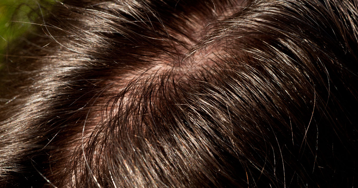 Menopause article: When Menopause Causes Greasy Hair